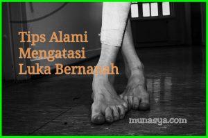 Tips Alami Mengatasi Luka Bernanah