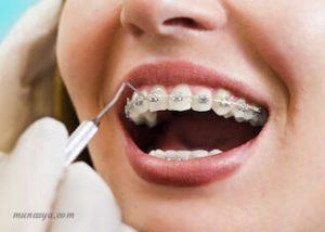 Warna kawat gigi