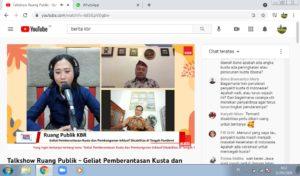 Talk show Penanganan Kusta
